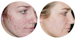 Burbank Acne Before and After