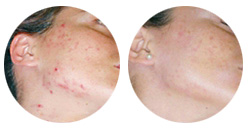 Acne Treatment in Burbank, CA